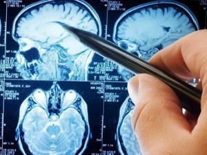 Çin'de Alzheimer ilacına onay çıktı