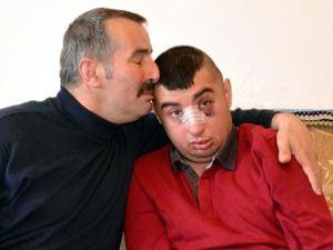 Erzurum'da zihinsel engelli gence dayak